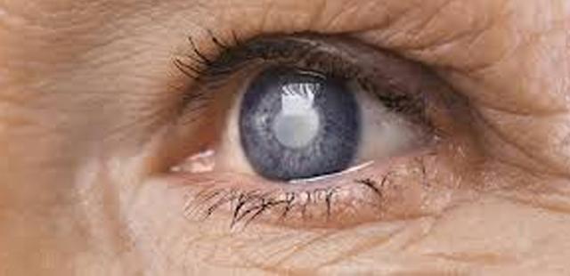 Prevenzione del glaucoma
